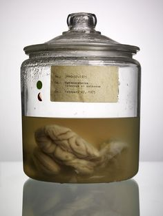 Malformed - A Collection of Human Brains from The Texas State Mental Hospital, photography by Adam Voorhes poetic brain, asylum, human brain, brain disord, medic interest, texas, histor medicin, mental hospit, hospitals