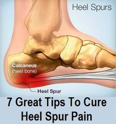 7 Great Tips To Cure Heel Spur Pain