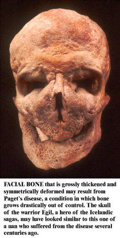 Egil's Bones | ASNØC Paget's disease (osteitis deformans) skull, bone