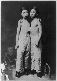 Korean conjoined twins ca.1903