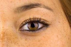 What Type Of Hyperpigmentation Treatment Works Best?   If left untreated, you may notice that levels of hyperpigmentation that are exposed to the sun will continue to become more severe, making hyperpigmentation treatment extremely important.