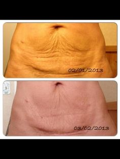 Nerium AD isn't just for faces! - Great botanical product with a money back guarantee.  Order yours at:  www.wrinkleresults.arealbreakthrough.com