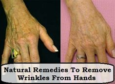 Natural Remedies To Remove Wrinkles From Hands