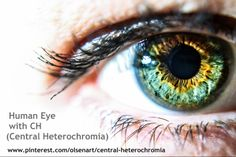 #central_heterochromia  #heterochromiaeye