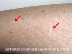 Hypo-pigmentation (De-pigmentation) Skin Camouflage-Before.