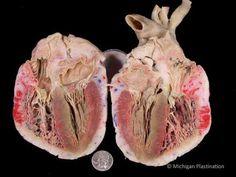 The Human Heart: coronary arteries dyed red; cardiac veins dyed blue