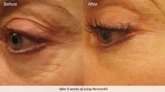 check out real science, real results amazing skin care product. Results Gallery | Nerium International