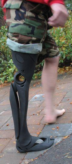 Bespoke Innovations | 3D-printed prosthetic limbs #prosthetics #3DPprosthetics