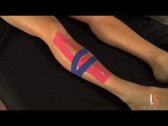 KT tape for shin splints