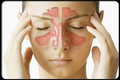 Home Treatment and Homeopathic Remedies For a Sinus Infection