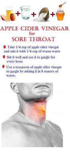 Apple cider for vinegar for sore throat