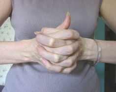 The Linga mudra is used as a remedy for the lungs, guarding against colds and cold weather. Strenghens immune system.  How to form the Linga mudra: Interlace fingers of both hands, extending one thumb upwards, encircle extended thumb with the index finger and thumb of your other hand.