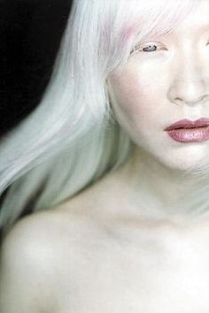 One person in 17,000 in the U.S.A. has some type of albinism. A common myth is that people with albinism have red eyes. In fact there are different types of albinism and the amount of pigment in the eyes varies. Although some individuals with albinism have reddish or violet eyes, most have blue eyes. Some have hazel or brown eyes. However, all forms of albinism are associated with vision problem.
