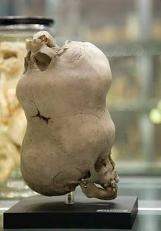 """""""Hunterian Museum : London, England The skull of a young boy with a second imperfect skull attached to its anterior fontanelle. Sent to John Hunter from Bengal, India in the late 1780s."""""""