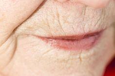 natural skin, home remedies, skin girl, natur skin, skin care, lip, ray ban sunglasses, homes, reduc wrinkl