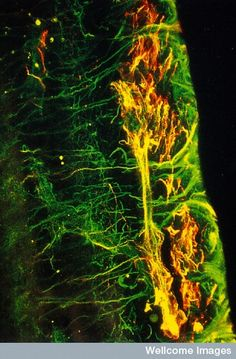 Scarring of the retina caused by diabetic retinopathy. The intermediate filaments (vimentin)  of the glial cells are stained in green and their glial fibrillary acidic protein (GFAP) in red.
