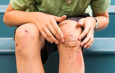 Minor Injuries   Staying stocked up on emergency first aid and in the know about good home remedies is very important for your everyday life. #survivalife www.survivallife.com