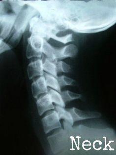 Printable X-rays