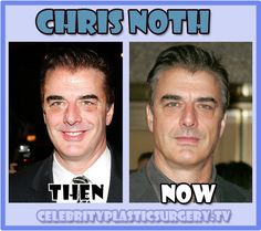 Plastic surgery done well.  Very well!