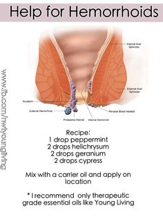 digestive disorders understanding hemorrhoids basics