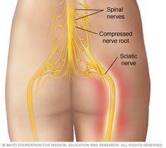 Can endometriosis affect the sciatic region? Yes. Read on!