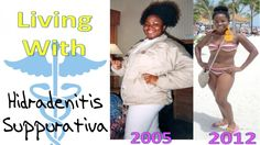 Living With Hidradenitis Suppurativa (My Experiences With the Disease)