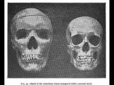 Nephilim Chronicles: Giant Human Skeletons: 8 Foot Giant Human Skeletons With Sharpened Razor Teeth Found in Virginia