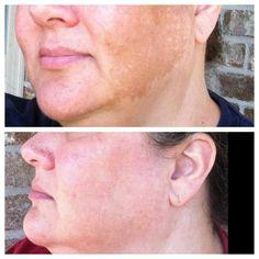 R+F REVERSE for sun damage, dark spots, lightening and brightening skin!  www.cambriabostrom.myrandf.com