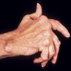 Home Remedies For Arthritis