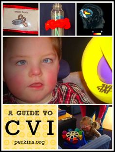 Cortical Visual Impairment - Ellen Mazel, M.Ed., discusses the implications of cortical vision impairment and shares strategies for assessment and intervention. An excellent guide for parents and teachers who are just learning about CVI.  Repinned by  SOS Inc. Resources  http://pinterest.com/sostherapy.