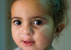 This sweet baby girl was born with severe clefts in her lip and palate that made eating and drinking difficult.   http://www.operationsmile.org.uk/testimonials/smile_show.phtml?id=30