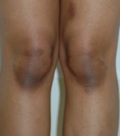 Skin Discoloration Information and Treatment: How To Naturally Lighten Dark Knees