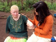 In West Africa the body parts of people with albinism are believed to have magic powers. Albino body parts can sell for 75,000$. In Zimbabwe, modern folklore posits that sexual intercourse with an albinistic person will cure one of HIV, leading to the rape of women with albinism in that region.