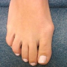 Natural Cure For Bunions - How To Cure Bunions Naturally | Find Home Remedy