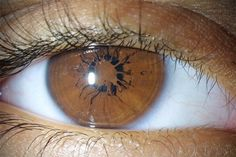 Persistent pupillary membrane (PPM) is a condition of the eye involving remnants of a fetal membrane that persist as strands of tissue crossing the pupil.