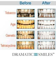 professional at-home teeth whitening products kits and gels >> teethwhitening --> www.dramaticsmiles.com