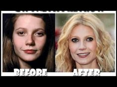 Celebrity Plastic Surgery Pictures Before and After
