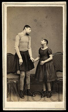 """Pinheads"" Carte de visite, ca. 1865. Pinheads were microcephalic people who were often placed in freak shows and dressed as adult babies. Was this better than an asylum at the time?"