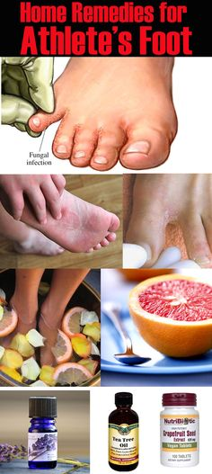 These amazing home remedies for athlete's foot use essential oils and other anti-fungal natural ingredients to cure and prevent your Athlete's foot infection.