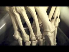 Ehlers-Danlos Syndrome (the connective tissue disorder I have)  Great video explaining how my little Fally suffers...help spread awareness ehler danlos pain, chronic pain, elher danlo, eds awareness, ehlersdanlo educ, pain ehler, ehlersdanlo syndrom, ehlers danlos syndrome, eds syndrome