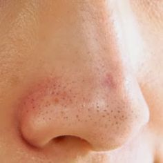 Home Remedies to Get Rid of Blackheads Naturally - Eve's Special