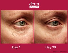 Derm Exclusive before & after