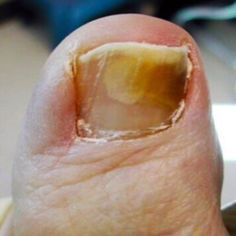 Home Remedy For Thick Brittle Toenails