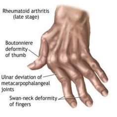Natural Cures For Arthritis In Hands