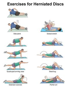 EXCLUSIVE PHYSIOTHERAPY GUIDE FOR PHYSIOTHERAPY STUDENTS: Exercise for Herniated disc/ Exeercise for disc prolapse/exercise fo slipped disc.