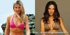Inthe past, manymediahave put thespotlight onplastic surgeryofElsaPataky.In part thisis because ithas been intelevision sincea young age,so thepublic has seenits transformations, on the otherhand, ithas to do withthefact that it has beenquite
