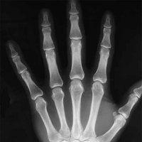Hand photo Xray_normal_hand_PA.jpg