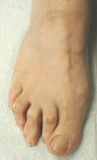 #Stretches for #hammertoes