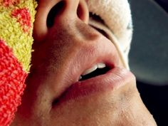 Canker Sore Treatment – What Causes Canker Sores