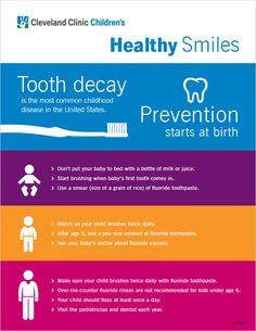 How to prevent childhood tooth decay. #parenting #teeth